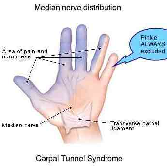 Carpal tunnel syndrome never affects the pinkie.