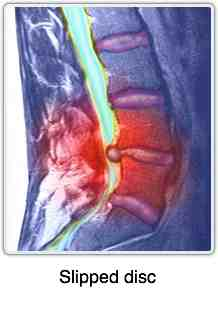 Lumbar MRI slipped disc