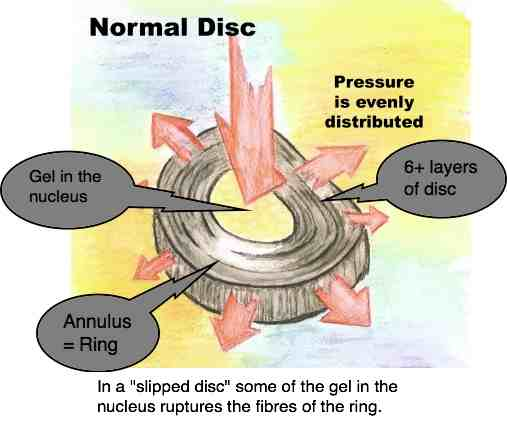 Diagram explaining a slipped disc.