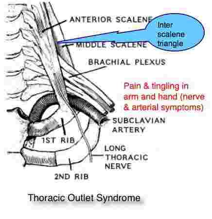 Thoracic outlet syndrome arm pain