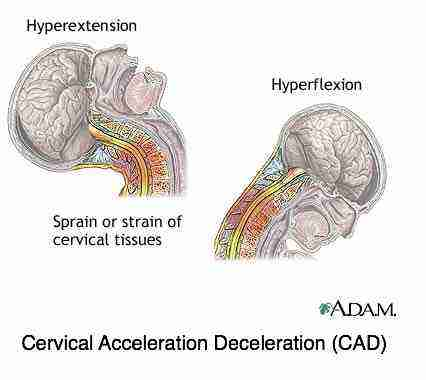 The effect of an acceleration deceleration injury, whiplash, on the cervical spine and cord.