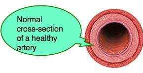 Normal artery