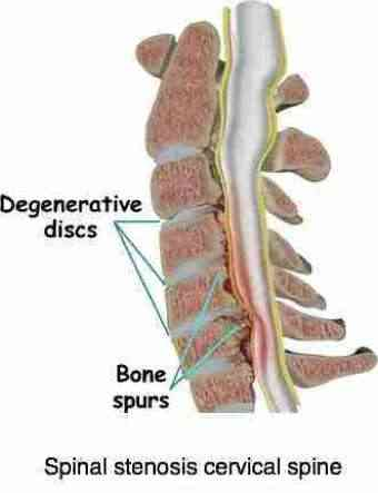 Spinal stenosis in the cervical spine