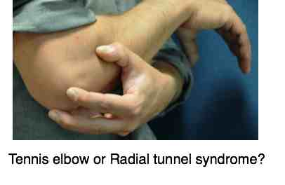 Tennis elbow or radial tunnel nerve syndrome?