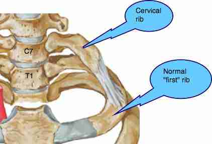 A cervical first rib will further compromise a whiplash injury to the lower cervical spine provoking shoulder pain and tingling in the arm.
