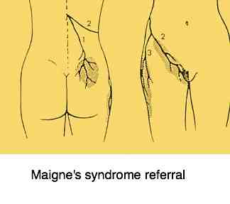 Maigne's syndrome referral.