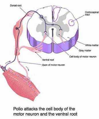 The polio virus attacks the motor nerve.