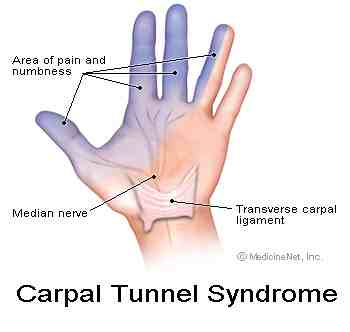 Carpal tunnel affects the median nerve causing tingling in the arms and hands.