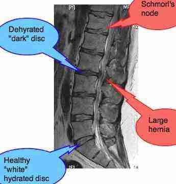 Lower back leg pain lateral MRI.